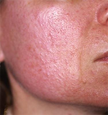 демодекоз кожи лица лечение фото