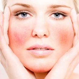 Аллергия на лице как лечить и что